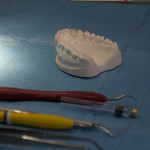 Corso ABCDental: Porcelain Laminate Veneers